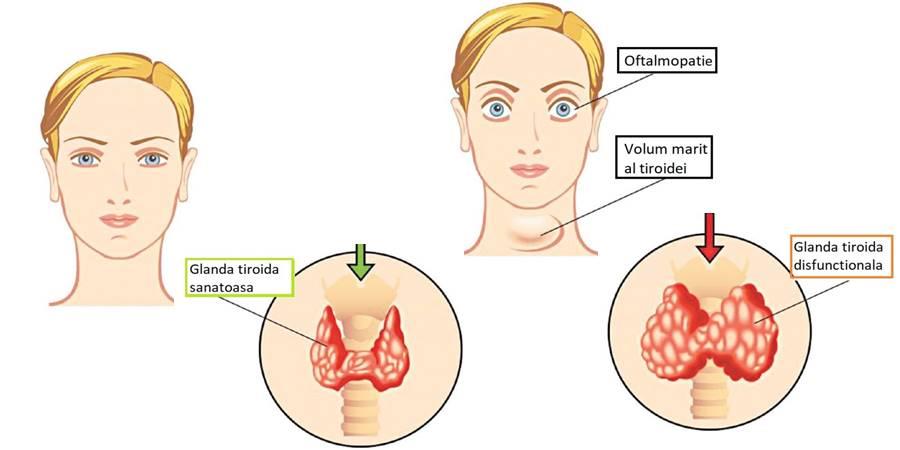 unguente pentru tratamentul artritei și artrozei