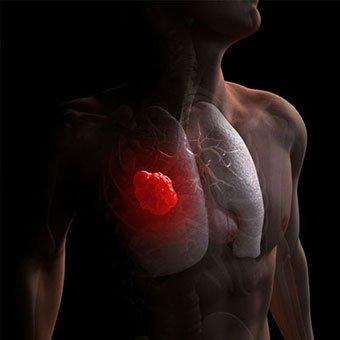 cancer bronhopulmonar OncoFort