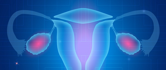 Tratament cancer ovarian (Prezentare caz)