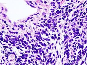 cancer pulmonar OncoFort
