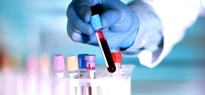 Se pot utiliza markerii tumorali in screeningul cancerului?