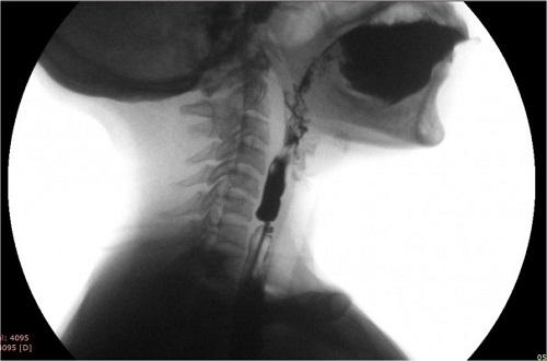 diagnostic cancer esofagian
